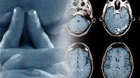 brain-injury-featured