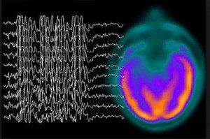 The Essentials of Epilepsy and Seizure Disorders: An In